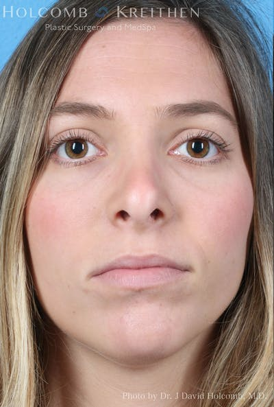 Rhinoplasty Gallery - Patient 8059727 - Image 1
