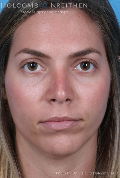 Rhinoplasty Gallery - Patient 8059727 - Image 2