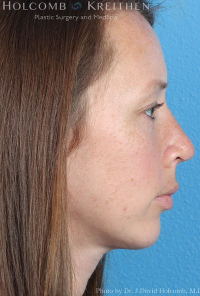 Rhinoplasty Gallery - Patient 8059725 - Image 6