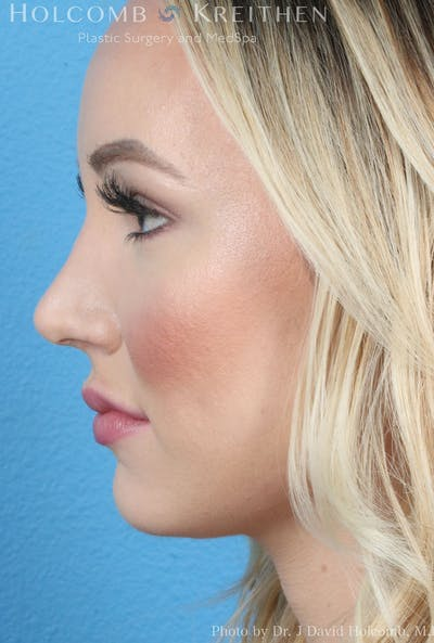 Rhinoplasty Gallery - Patient 8059726 - Image 6