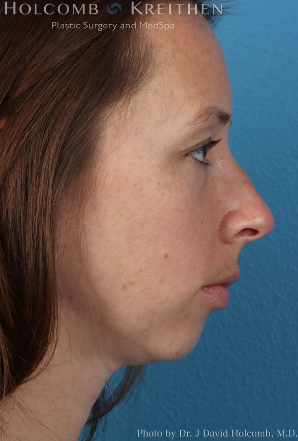 Rhinoplasty Gallery - Patient 8059725 - Image 5