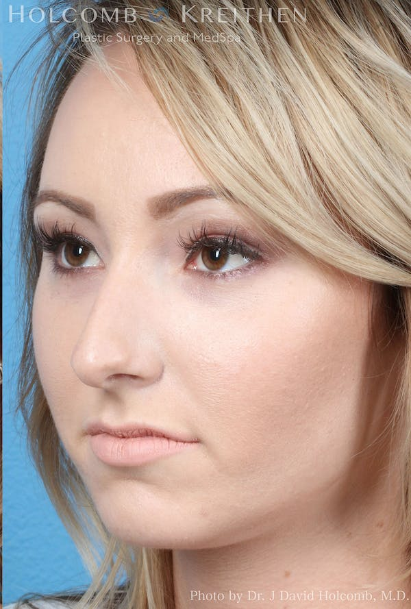 Rhinoplasty Gallery - Patient 8059726 - Image 3