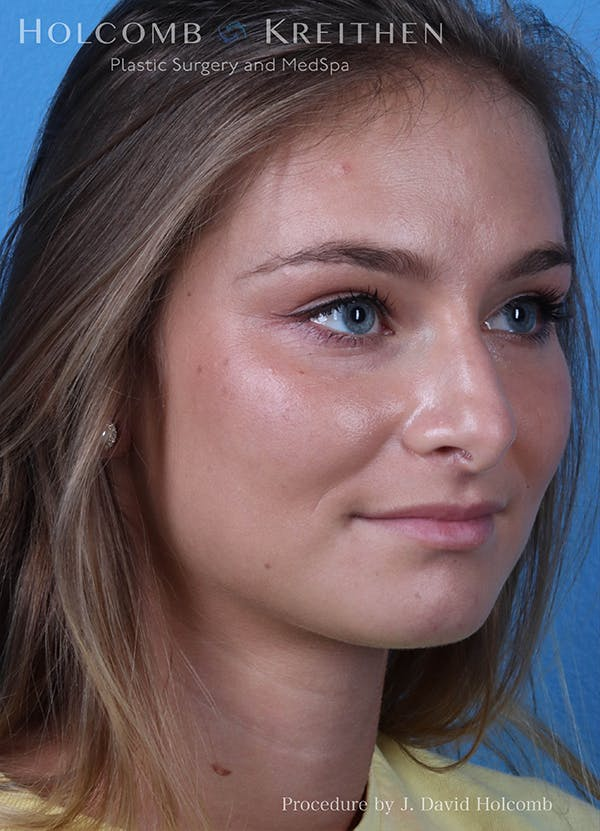 Rhinoplasty Gallery - Patient 18427354 - Image 3
