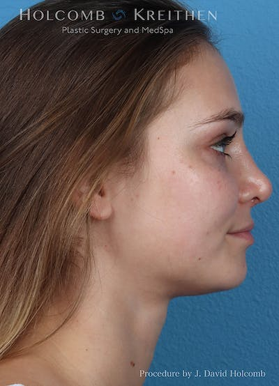 Rhinoplasty Gallery - Patient 18427354 - Image 6