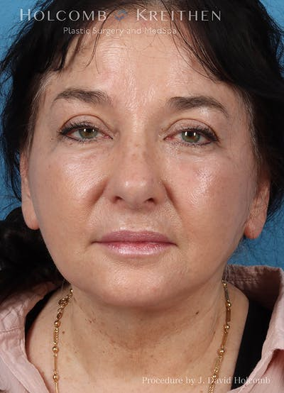 Facelift Gallery - Patient 18727399 - Image 2