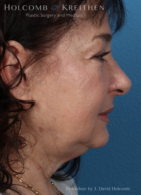 Facelift Gallery - Patient 18727399 - Image 5