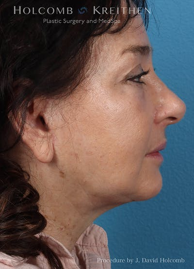 Facelift Gallery - Patient 18727399 - Image 6