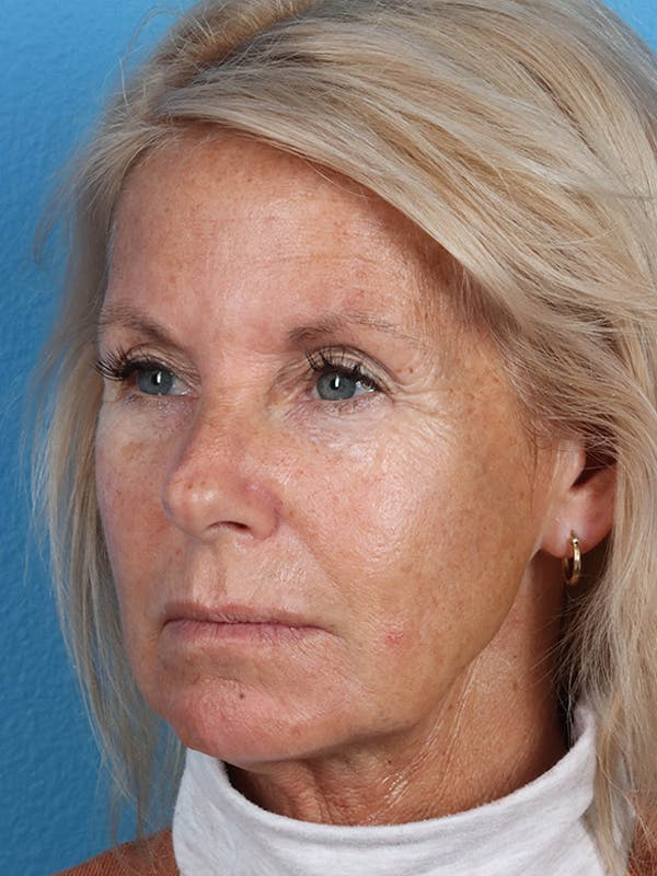 Fillers Gallery - Patient 18906259 - Image 1