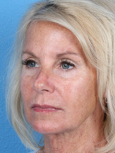 Fillers Gallery - Patient 18906259 - Image 2