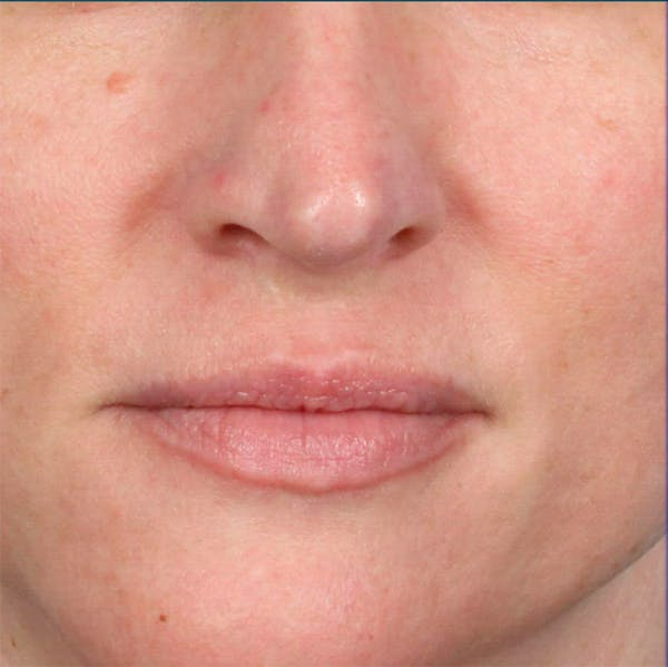 Fillers Gallery - Patient 18906260 - Image 1