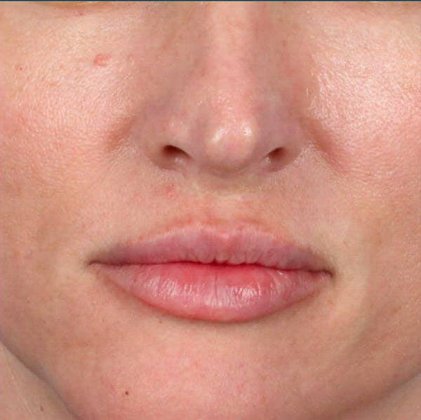 Fillers Gallery - Patient 18906260 - Image 2