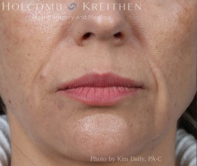 Fillers Gallery - Patient 18906261 - Image 1