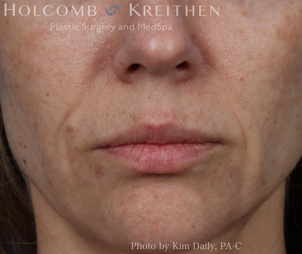 Fillers Gallery - Patient 18906261 - Image 2