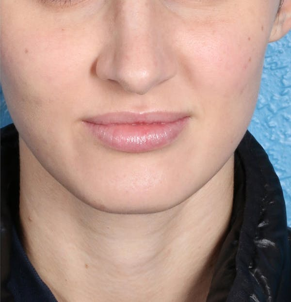 Fillers Gallery - Patient 18906262 - Image 2