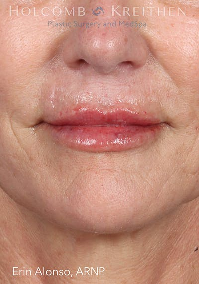 Fillers Gallery - Patient 18906263 - Image 2