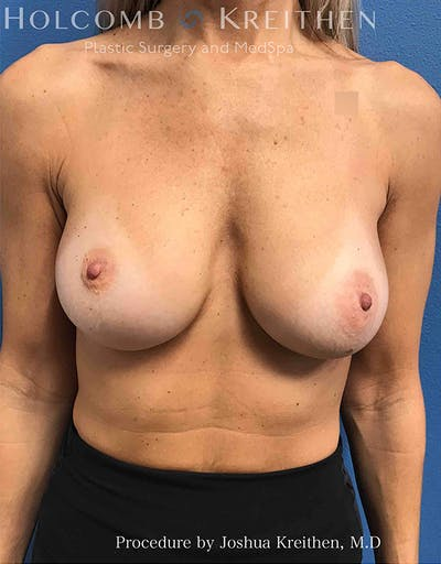 Breast Implant Exchange Gallery - Patient 21366229 - Image 1