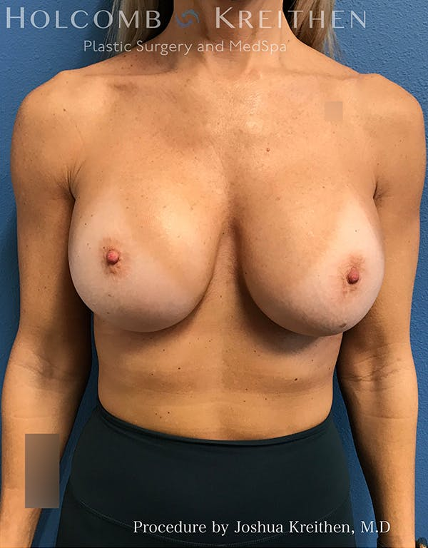 Breast Implant Exchange Gallery - Patient 21366229 - Image 2