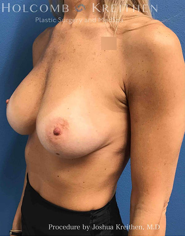 Breast Implant Exchange Gallery - Patient 21366229 - Image 3