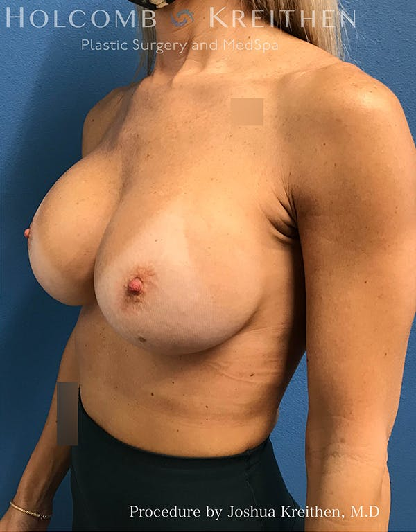 Breast Implant Exchange Gallery - Patient 21366229 - Image 4