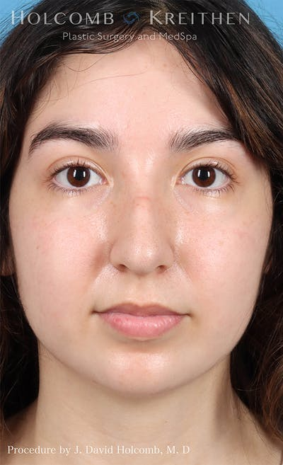 Rhinoplasty Gallery - Patient 24311394 - Image 1