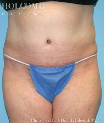 Tummy Tuck Gallery - Patient 35298009 - Image 2