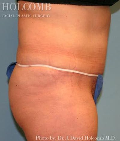 Tummy Tuck Gallery - Patient 35298009 - Image 4