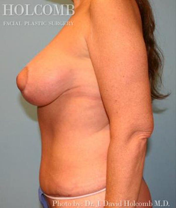 Tummy Tuck Gallery - Patient 35305141 - Image 6