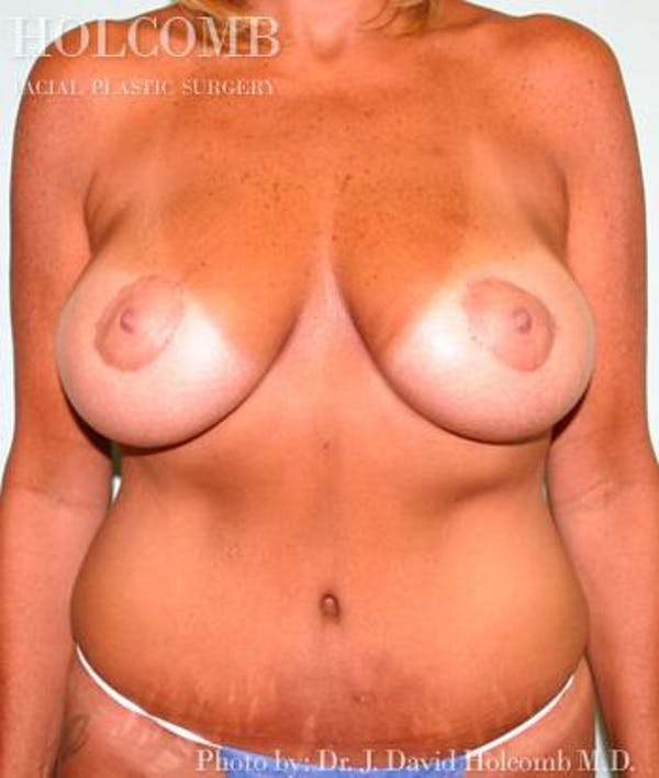 Tummy Tuck Gallery - Patient 35306004 - Image 2
