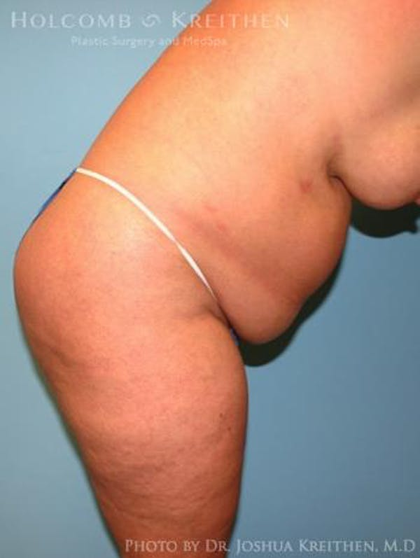 Tummy Tuck Gallery - Patient 35306136 - Image 5