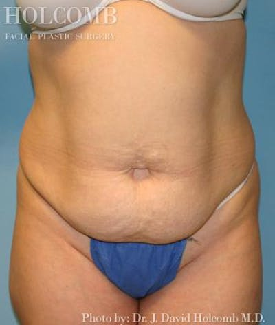 Tummy Tuck Gallery - Patient 35306155 - Image 1