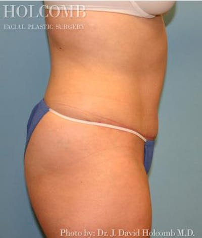 Tummy Tuck Gallery - Patient 35306155 - Image 4