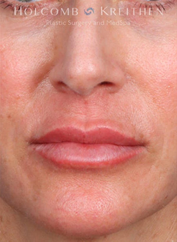Fillers Gallery - Patient 35779548 - Image 2