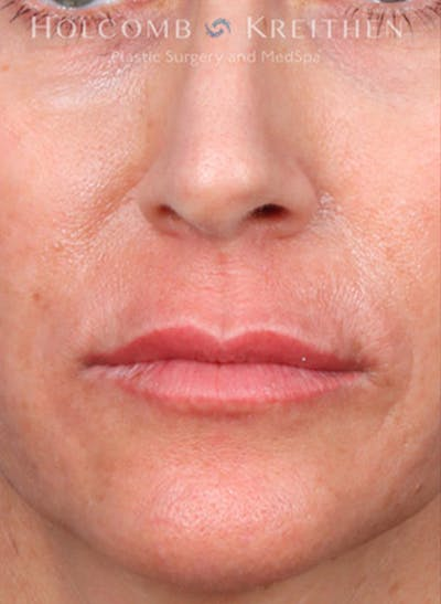 Fillers Gallery - Patient 35779548 - Image 1