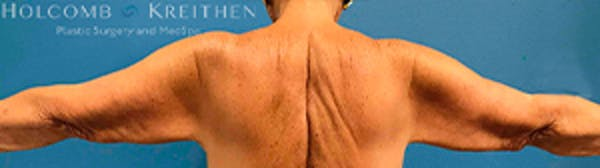 Arm Lift Gallery - Patient 39123408 - Image 1