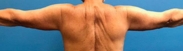 Arm Lift Gallery - Patient 39123408 - Image 2