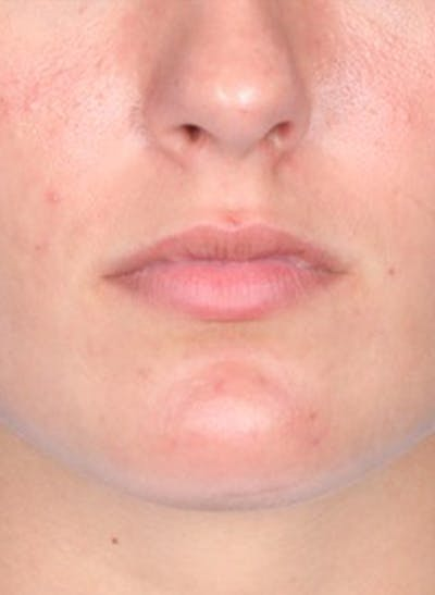 Fillers Gallery - Patient 31418216 - Image 1