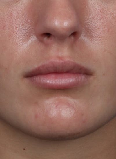Fillers Gallery - Patient 31418216 - Image 2