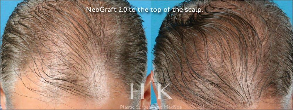 Neograft 2.0 Gallery - Patient 45874335 - Image 1
