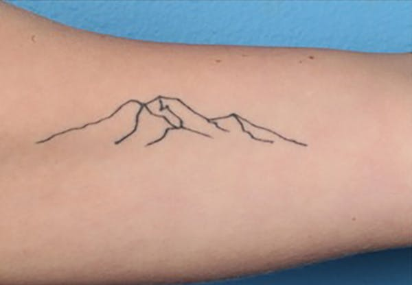 PicoPlus Tattoo Removal Gallery - Patient 45874796 - Image 1