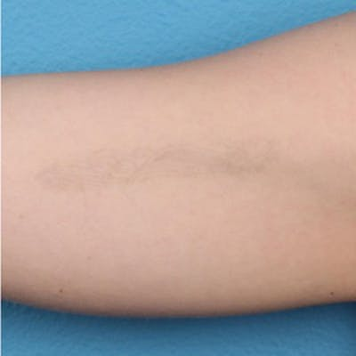 PicoPlus Tattoo Removal Gallery - Patient 45874796 - Image 4