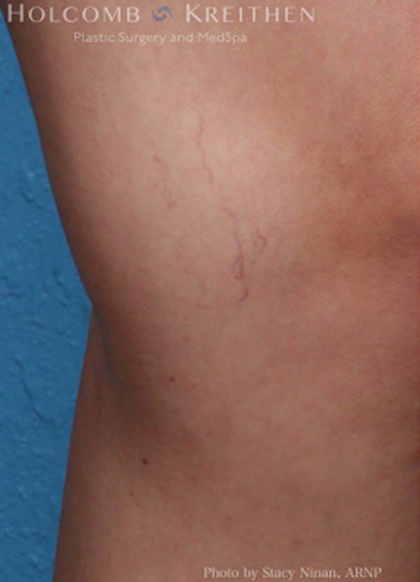 Excel V Vascular Laser Gallery - Patient 45875856 - Image 1