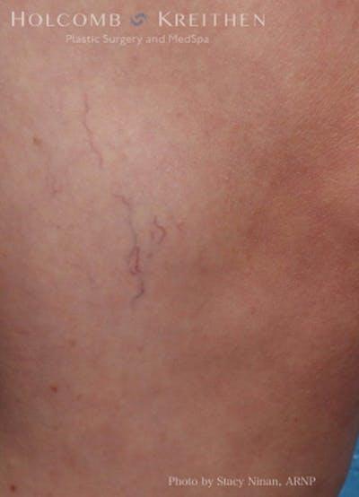 Excel V Vascular Laser Gallery - Patient 45875856 - Image 2