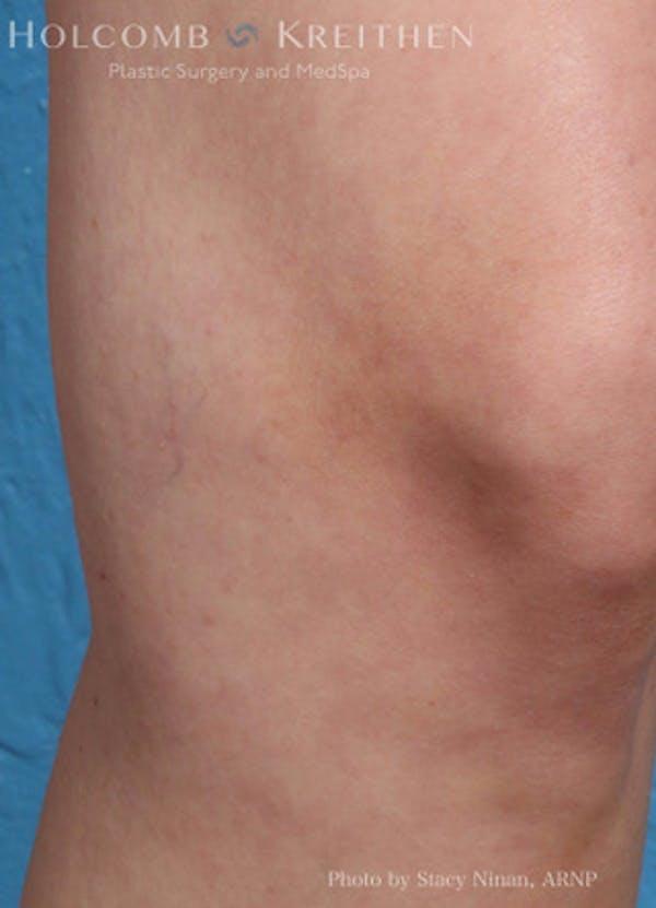 Excel V Vascular Laser Gallery - Patient 45875856 - Image 4