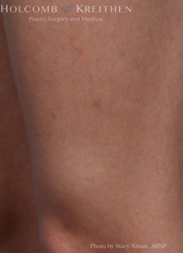 Excel V Vascular Laser Gallery - Patient 45875856 - Image 6