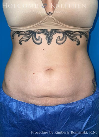 Coolsculpting Gallery - Patient 45876059 - Image 1