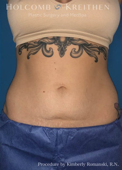 Coolsculpting Gallery - Patient 45876059 - Image 2