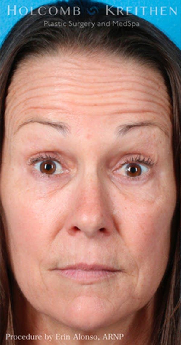 BOTOX Gallery - Patient 45876710 - Image 1