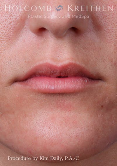 Fillers Gallery - Patient 60071532 - Image 1