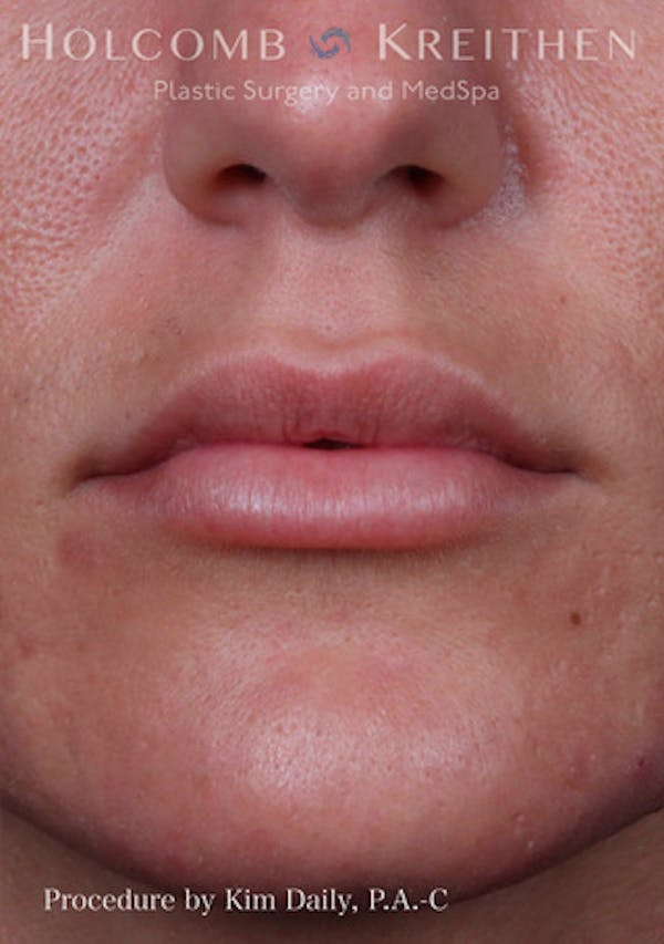 Fillers Gallery - Patient 60071532 - Image 2