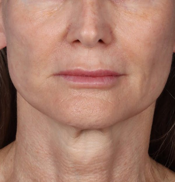 Fillers Gallery - Patient 61837737 - Image 2